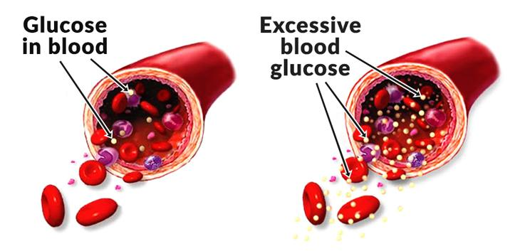 blood-sugar-levels-and-paleo_diagram_of_excessive_blood_glucose